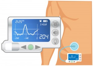 Insulin Pump HiRes
